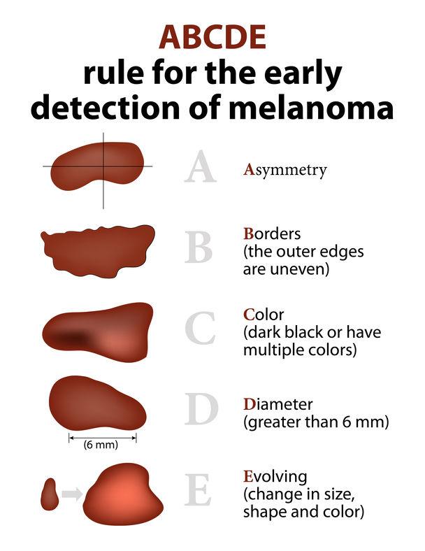 Εξειδικευμένη αντιμετώπιση του Καρκίνου του Δέρματος